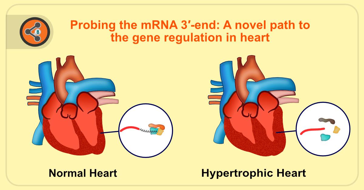 hypertrophic heart